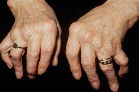 arthritis picture 1
