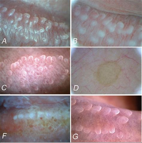pics of gential warts on the penis picture 8