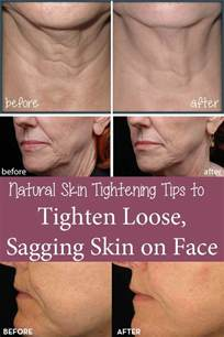 nature skin tightening secrets picture 3