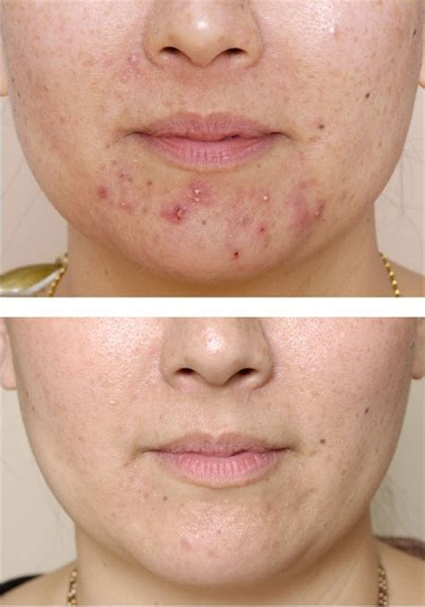 Acne cure picture 11