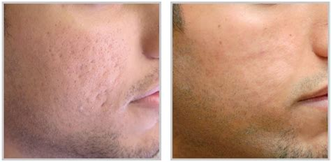 bbl laser for acne picture 1