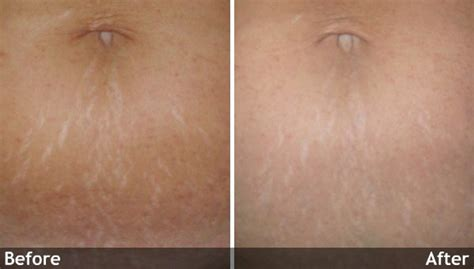 cool beam laser surgery for stretch marks picture 5