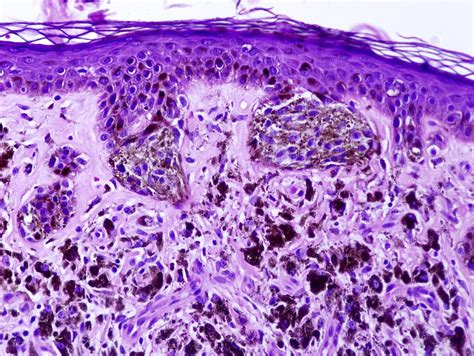 dysplastic cells skin picture 2