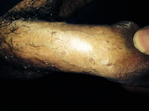 penis touched genital wart picture 15