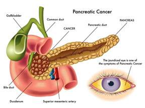 pancreatic cysts caused by yeast picture 6