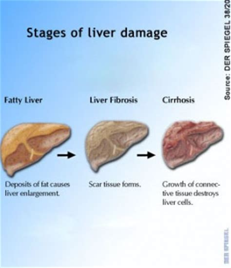 help cat fatty liver picture 3