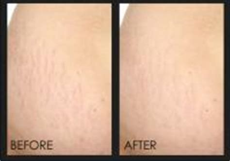 keep lifting stretch marks picture 6
