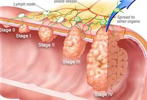 prognosis of cancer that penetrates the wall of the colon picture 8