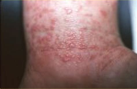 skin problems linked with hepa is b causing itching picture 17