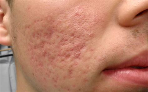acne scaring picture 17