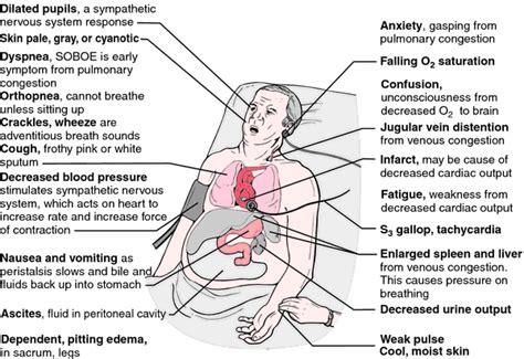 acute liver failure life expectancy picture 7
