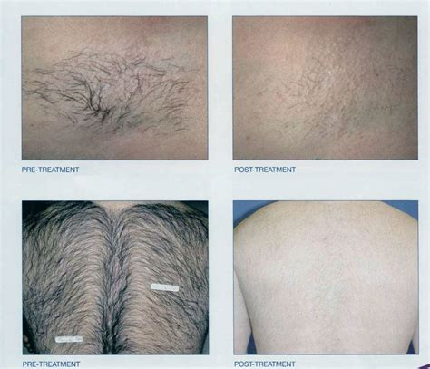 hair removal coffee picture 1
