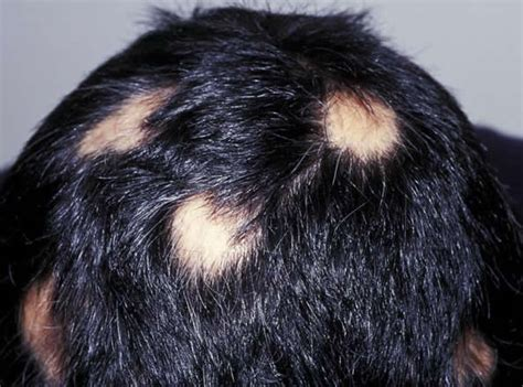 scalp conditions that cause hair loss picture 5