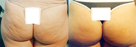 cellulite reduction picture 15