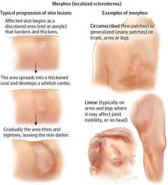 causes of changes skin condition picture 5