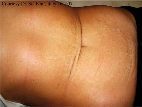 painful stretch marks picture 1