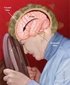 head trauma blood release picture 3
