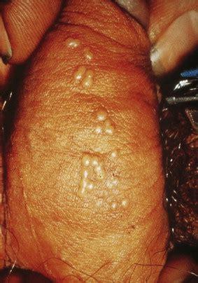 herpes genital men picture 1