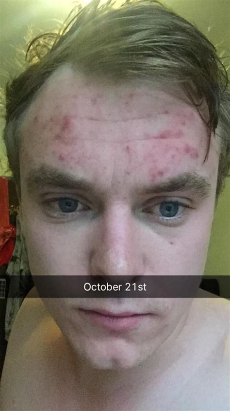 bad reviews on klaron for acne picture 2