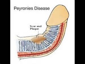 castor oil and peyronie's picture 3