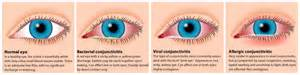 viral or bacterial conjunctivitis picture 3