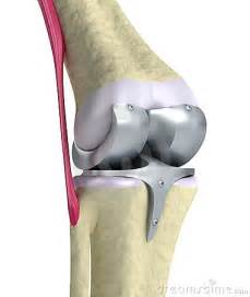 ball joint replacement picture 5
