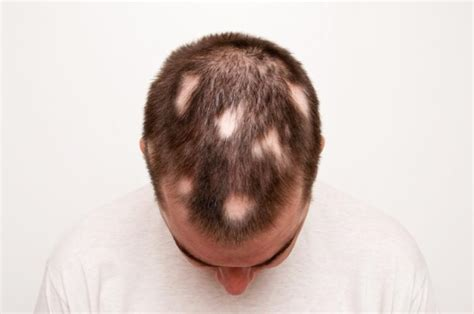 causes of body hair loss picture 19
