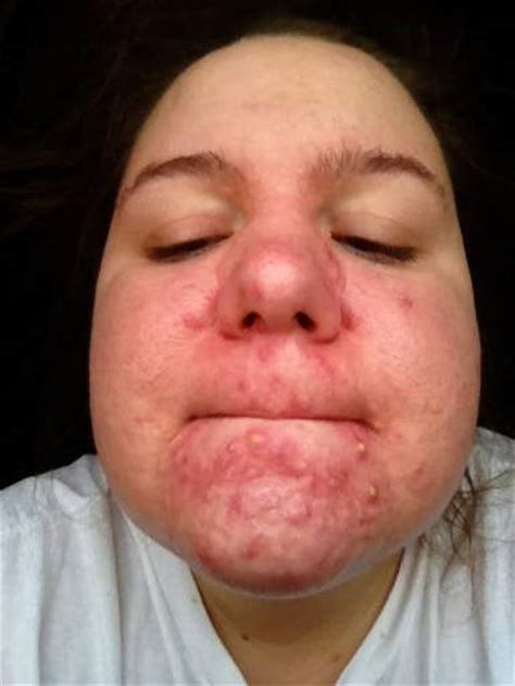 cystic acne around cheeks picture 2