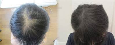 female hair loss picture 2