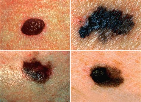 melanosis of the skin picture 3