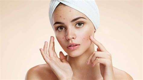 acne facial picture 2