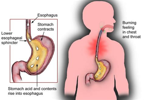 treatments for severe intestinal gas and burning picture 8