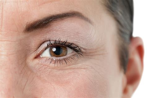 aging eyes picture 6