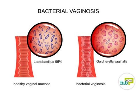 what are the symptoms of bacterial vaginosis picture 1