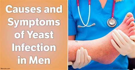 yeast infection for men picture 18