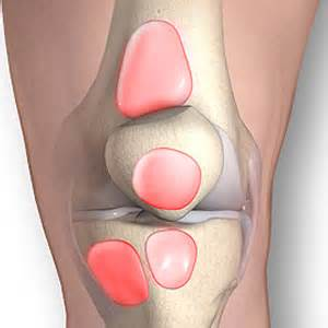 bursitis in many joints picture 7