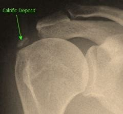 freet reatment of calcium deposite in penis picture 3