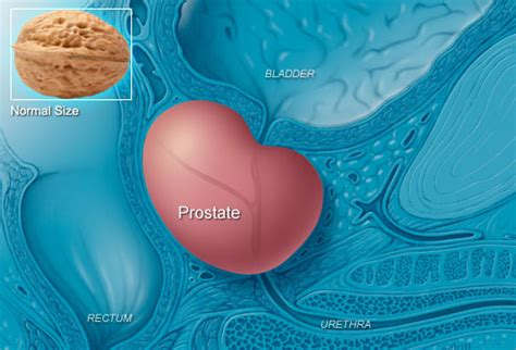 prostate tool relief picture 3