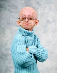 accelerated aging progeria syndrome picture 6