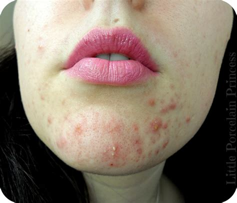doxycycline for mild acne picture 1