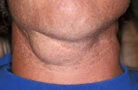 swollen lymph nodes skin rash picture 9
