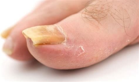 toenail fungus treatment vinegar picture 5