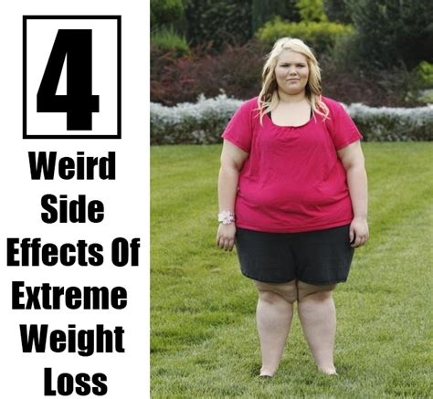 extreme weight loss 08/13/13 picture 6