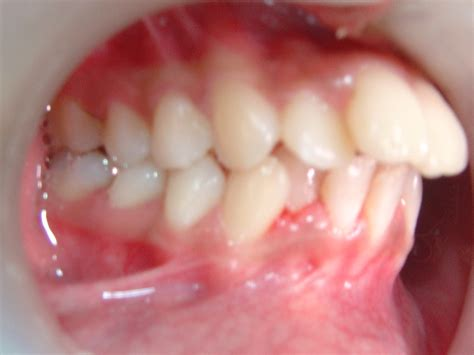 correcting impacted teeth picture 1