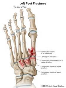lisfranc joint picture 6