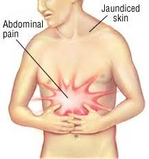gall bladder and stomach pain and nausea picture 9