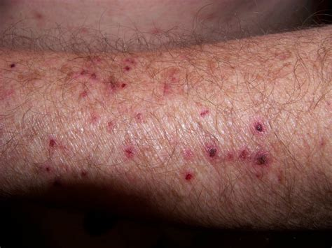 pictures of skin ailment in humans picture 3