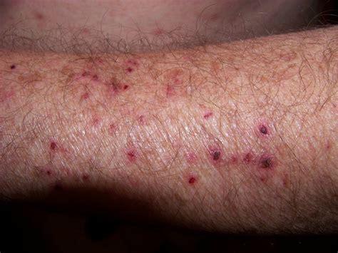 human skin parasites picture 2