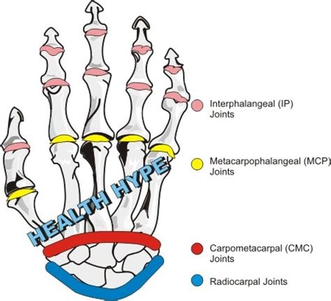 first finger joint pain picture 13