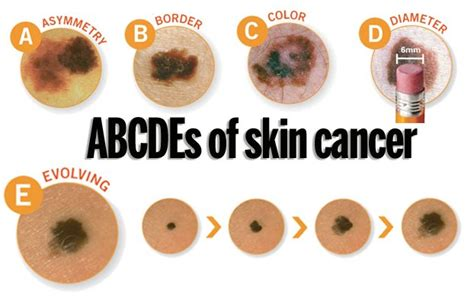 abcs of skin cancer picture 14